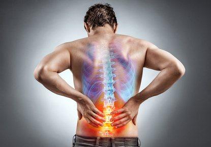 Rückenprobleme Bandscheibenvorfall